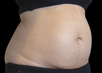 Exilis_System_PIC_006-Before-abdomen-female-BTL-Aesthetics_412x296px