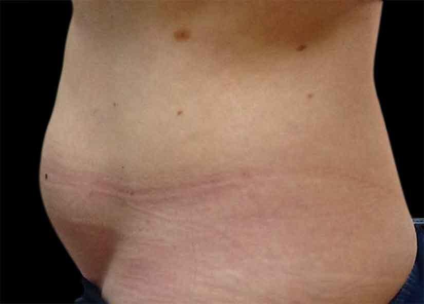 Abdomen_BTL_Vanquish_ME_PIC-304-Before-abdomen-female-Karen-Harkaway-MD-825x592px