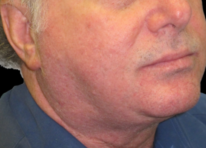 BTL_Exilis_System_PIC_022-After-eyes-male-William-Loverme-MD-3TX_412x296px