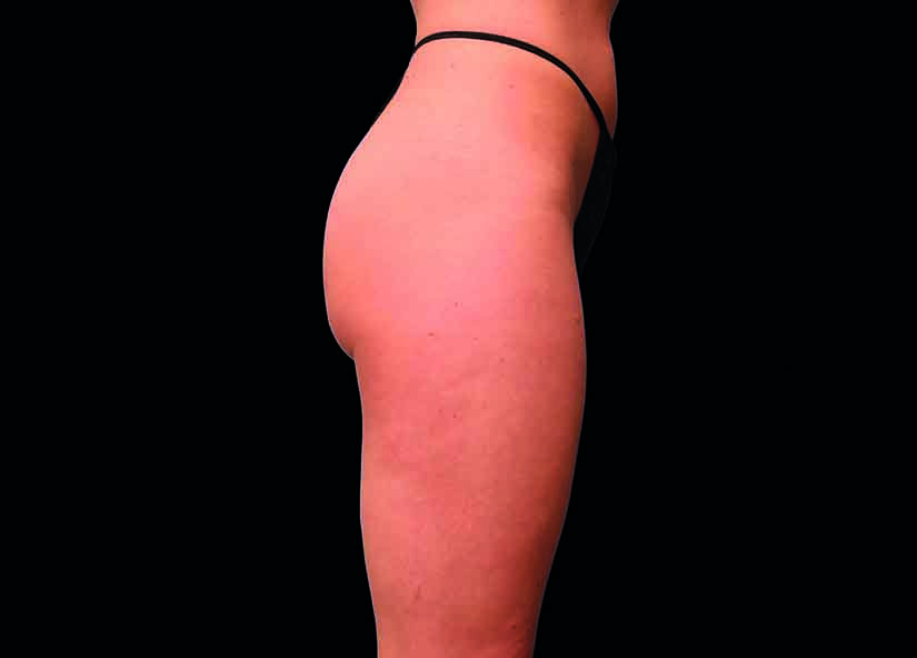 Buttocks_BTL_Emsculpt_PIC_016-Before-female-Brian-Kinney-MD