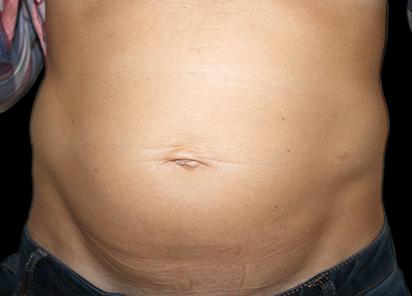 Emsculpt_PIC_008-Before-abdomen-female-Katerina-Fajkosova-MD__412x296px