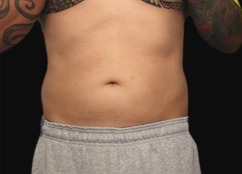 Abdomen_BTL_Vanquish_ME_PIC_007-After-abdomen-male-Frank-Agullo-MD-4TX_825x592px