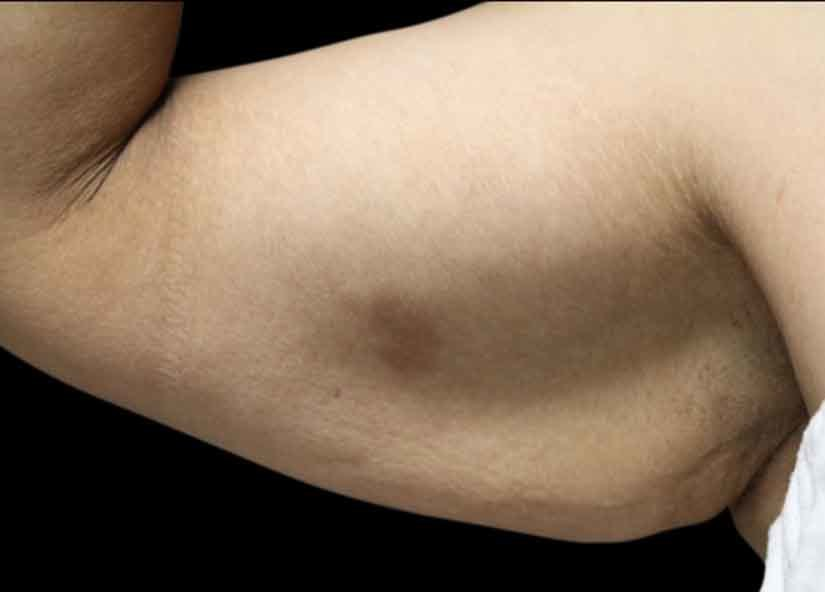 Arms_Before-3_825x592_Exilis
