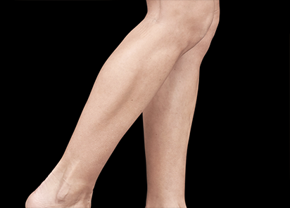 Emsculpt_PIC_084-Before-calves-female-Reminder-Saluja-MD_412x296px