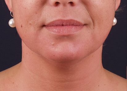 Exilis_PIC_116-After-neck-female-Katerina-Fajkosova-MD-4TX_412x296px