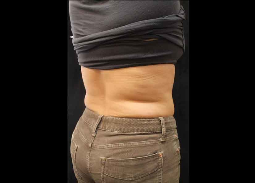 Abdomen_BTL_Cellutone_PIC_009-After-abdomen-female-Suneel-Chilukuri-MD-4TX1