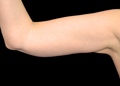 Exilis_Ultra_PIC_003-After-arms-female-BTL-Aesthetics-4TX_412x296px