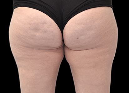 Emtone_PIC_018-After-buttock-female-BTL-Aesthetics-3M-4TX_412x296