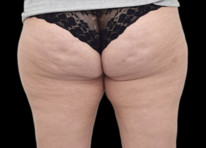 Emtone_PIC_018-Before-buttock-female-BTL-Aesthetics_412x296