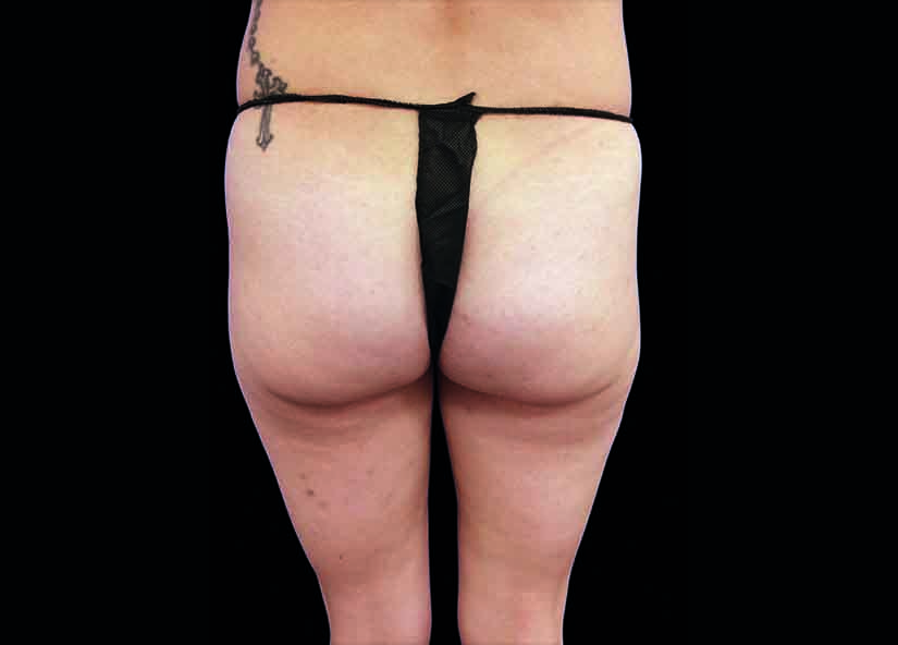 Buttocks_BTL_Emsculpt_PIC_018-Before-female-Carolyn-Jacob-MD