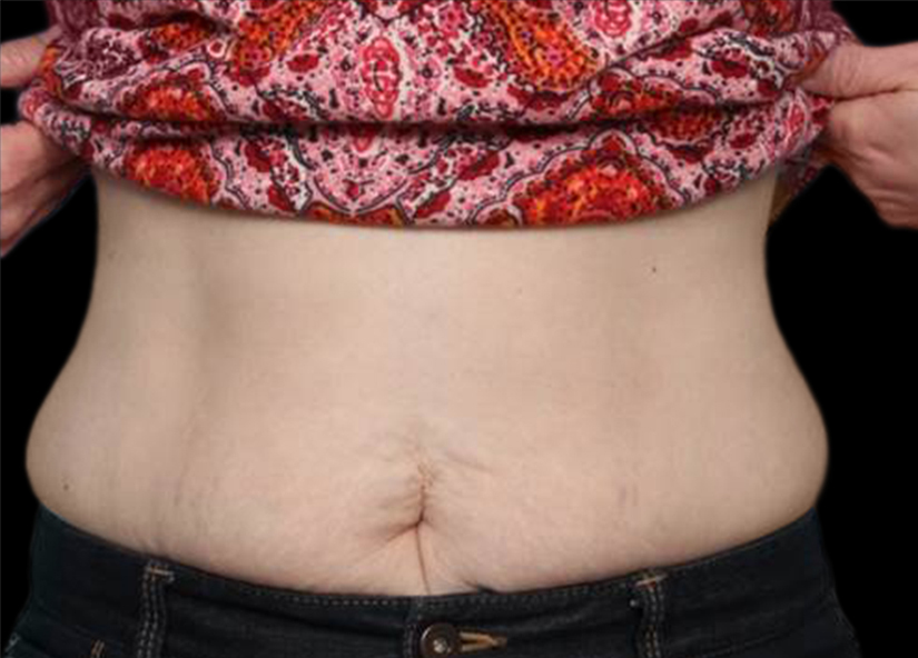 Abdomen_BTL_Vanquish_ME_PIC_004-After-abdomen-female-Frank-Agullo-MD-4TX_825x592px
