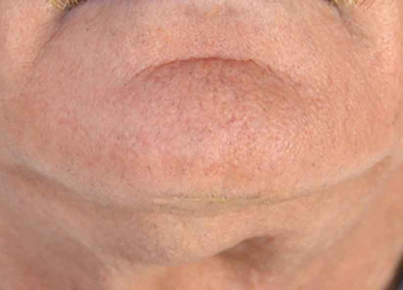 Exilis After Picture Neck