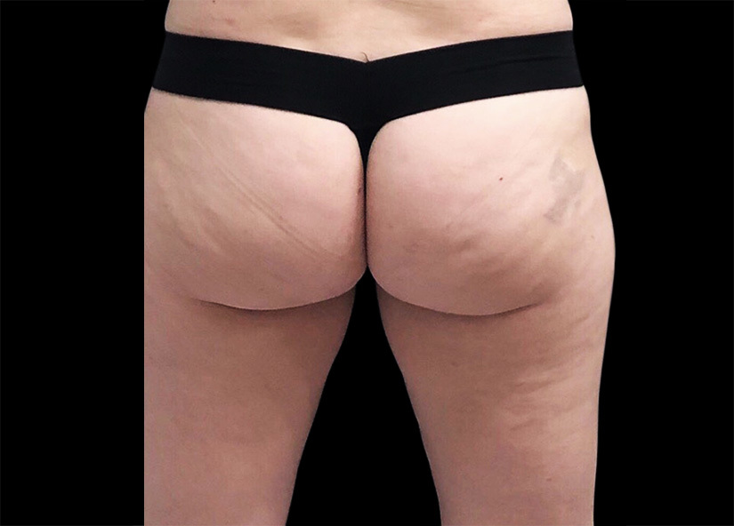 Emsculpt_PIC_092-before-buttock-female-btl-aesthetics_825x592px