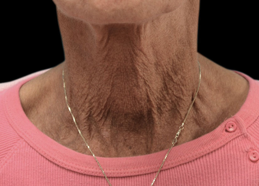 Exilis Before Picture Neck Female