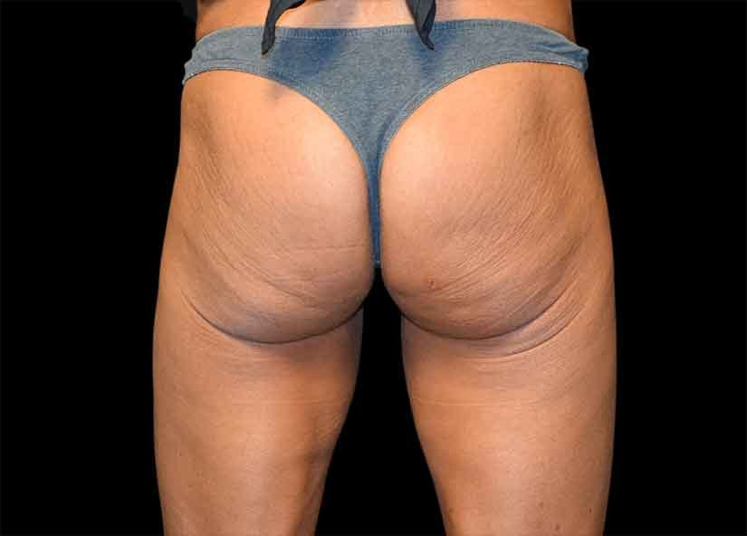 Buttocks_Emsculpt_PIC_044-before-female-Alain-michon-md-ottawa-on-canada-825x592px