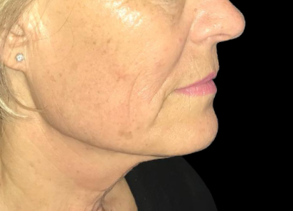 Exilis_Ultra_360_PIC_108-After-face-neck-female-Jaye-Bird-Aesthetics-Clinic-4TX_412x296px