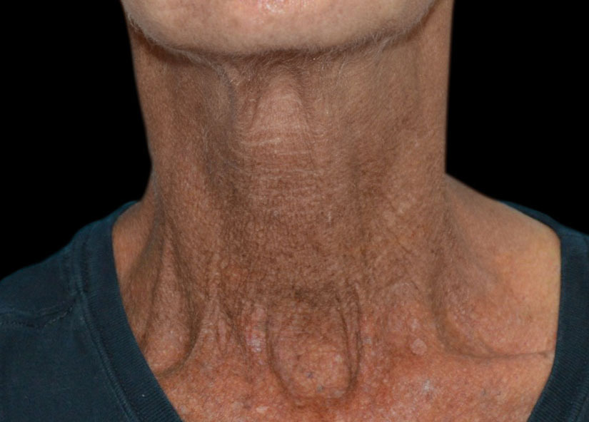 Neck_Exilis_PIC_026-After-neck-female-4TX_825x592px