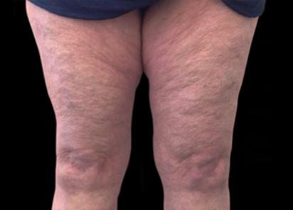 BTL_Vanquish_ME_PIC_006_After-legs-Annie-Chiu-MD-4TX_412x296px