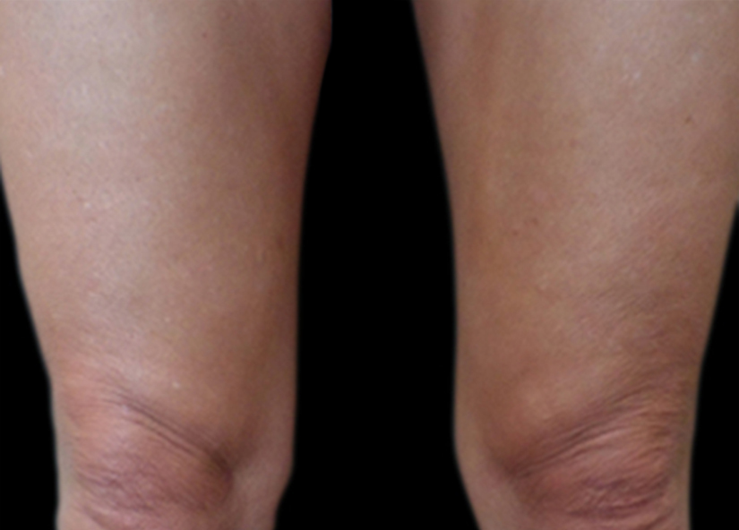 Legs_VitalityPatients_1After_prg