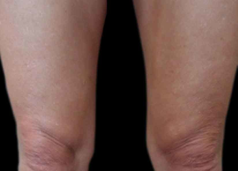 Exilis After Picture Legs