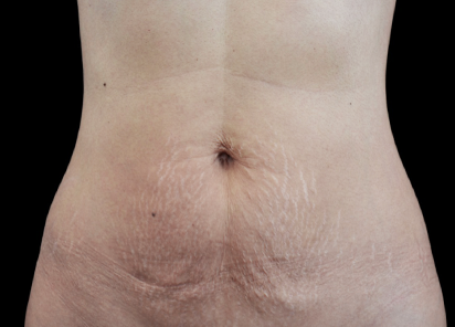 Emtone_PIC_002-After-abdomen-female-Klaus-Fritz-MD-4TX_412x296