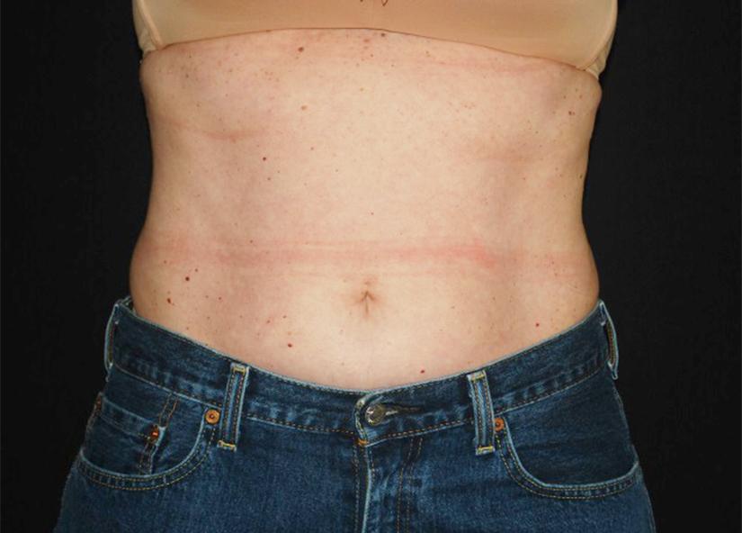 Abdomen_BTL_Vanquish_ME_PIC_093-After-abdomen-female-Shelena-Lalji-MD-4TX_825x592px