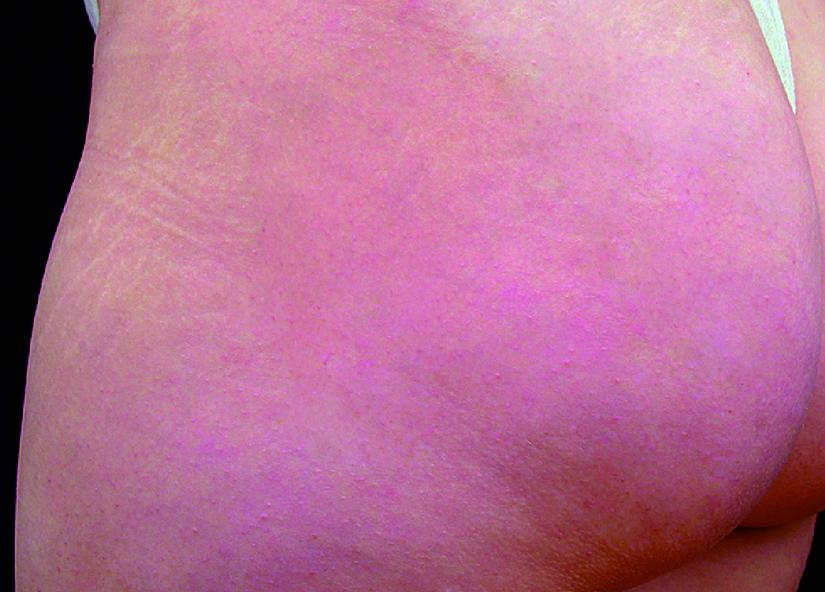 Buttocks_BTL-X-Wave_PIC_003-After-buttocks-female-btlaesthetics-4TX_825x592px