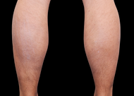 Emsculpt_PIC_082-Before-calves-male-Reminder-Saluja-MD_825x592