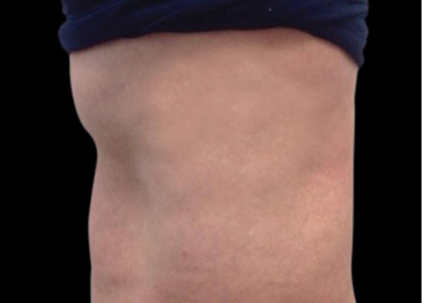 Abdomen_BTL_Vanquish_ME_PIC_002_After-abdomen-Annie-Chiu-MD-3TX2