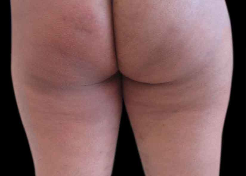 Buttocks_BTL-X-Wave_PIC_004-After-buttocks-female-btlaesthetics-4TX_825x592px