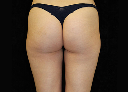 Emtone_PIC_009-After-buttock-female-Ann-Watwood-NMD-8W-4TX_412x296