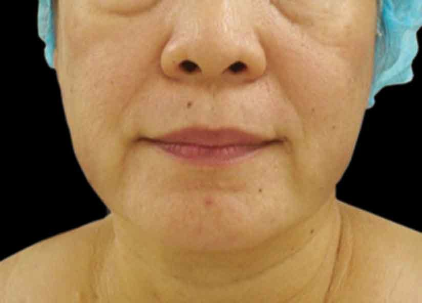 Head_Exilis_PIC_028-Before-face-female-Tran-Thi-Anh-Tu_825x592px