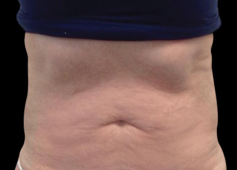 Abdomen_BTL_Vanquish_ME_PIC_001_After-abdomen-Annie-Chiu-MD-3TX2