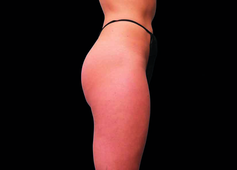Buttocks_BTL_Emsculpt_PIC_016-After-female-Brian-Kinney-MD-4TX