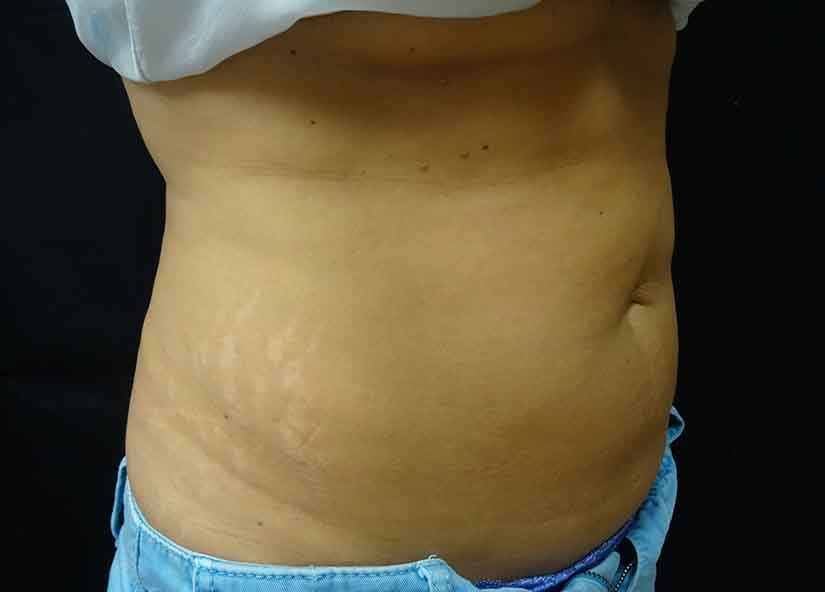 Abdomen_BTL_Vanquish_ME_PIC_096-After-abdomen-female-Grace-Liu-MD-6TX_825x592px