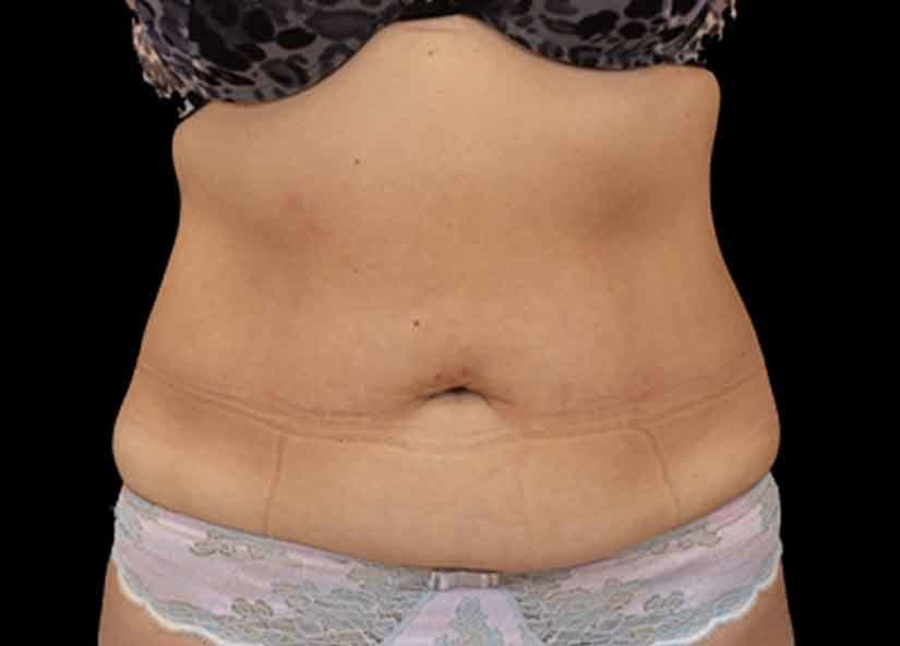 Abdomen_BTL_Emsculpt_PIC_027-after-female-Paula-Lozanova-MD-4TX_825x592px