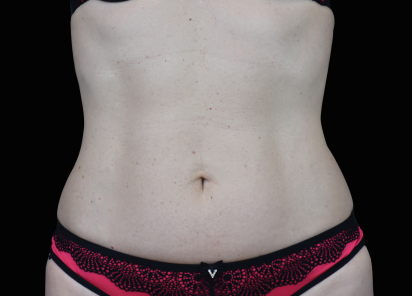 Emsculpt_neo_PIC_018-before-abdomen-female-Radina-Denkova-MD__412x296px