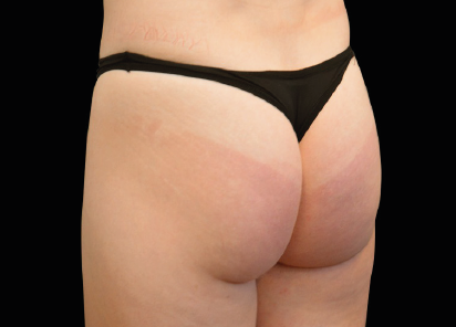 Emsculpt_Neo_PIC_045-before-buttock-female-Klaus-Hoffman-MD_412x296px