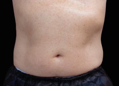 Emsculpt_neo_PIC_043-before-abdomen-male-David-Kent-MD__412x296px