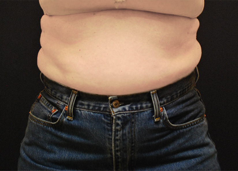 Abdomen_BTL_Vanquish_ME_PIC_093-Before-abdomen-female-Shelena-Lalji-MD_825x592px