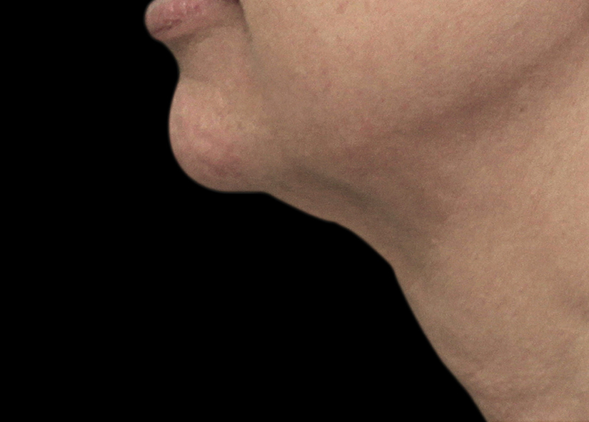 Neck_Exilis_PIC_025-After-neck-female-Tenore-4TX_825x592px
