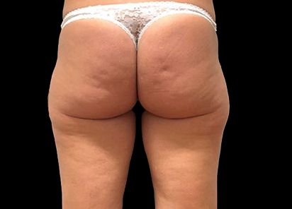 Emtone_PIC_028-Before-buttock-female-Giulia-Bianchi_412x296