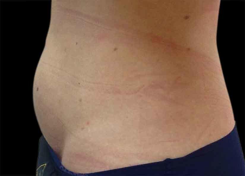 Abdomen_BTL_Vanquish_ME_PIC-304-After-abdomen-female-Karen-Harkaway-MD-4TX-825x592px
