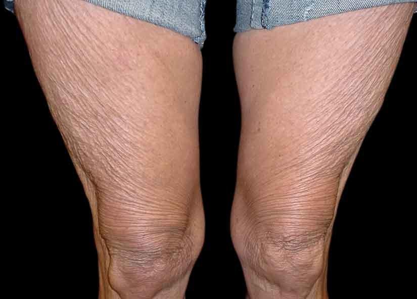 Exilis Before Picture Legs