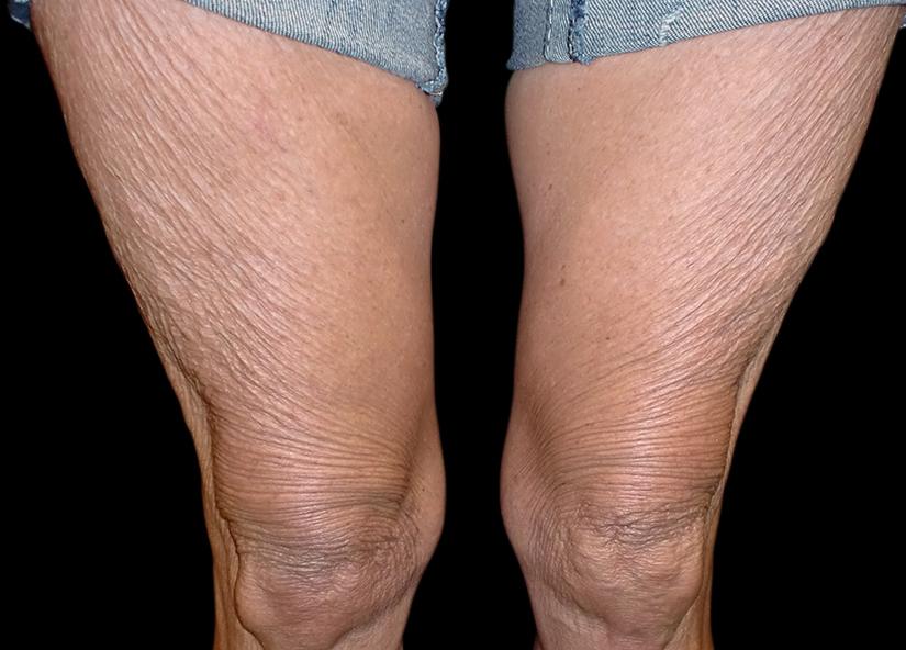 Legs_Exilis-Leg-Tight-before-Dr-Lain-7-13