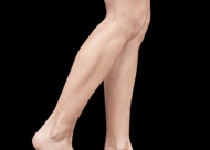 Emsculpt_PIC_084-Before-calves-female-Reminder-Saluja-MD_825x592