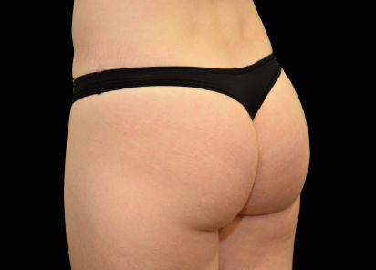 Emsculpt_Neo_PIC_045-after-last-tx-buttock-female-Klaus-Hoffman-MD_412x296px
