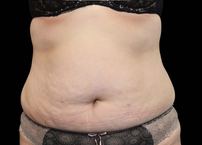 Abdomen_Exilis_Ultra_PIC_001-Before-abdomen-female1