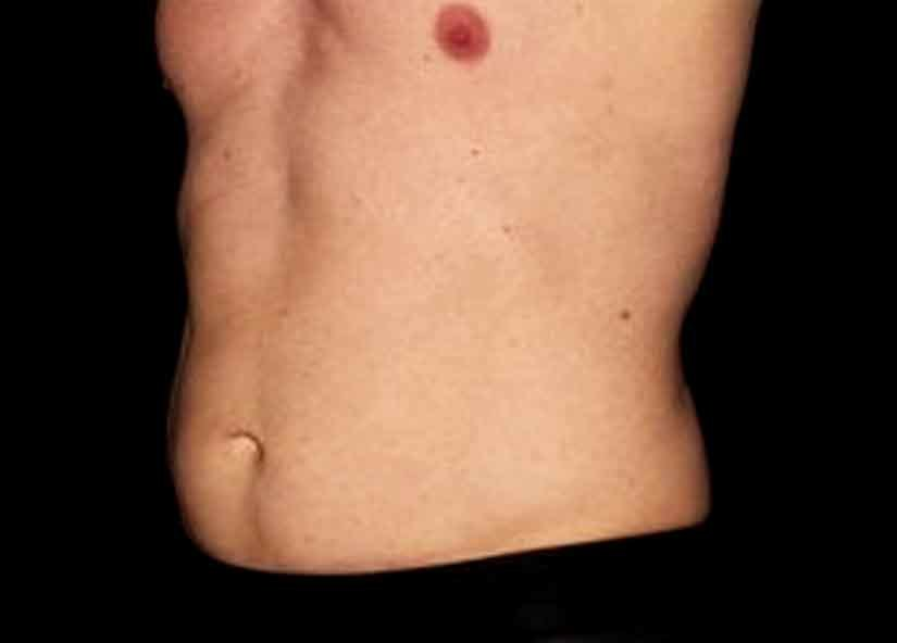 Abdomen_BTL_Emsculpt_PIC_019-before-male-bailey-chris_825x592px