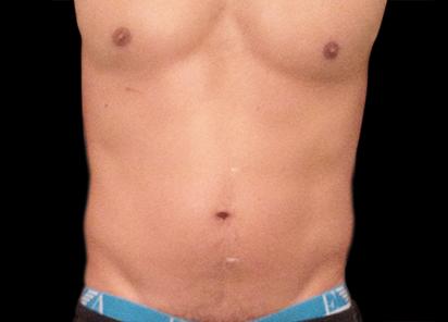 Emsculpt_PIC_013-Before-abdomen-male-Anita-Sturnham-MD_412x296px